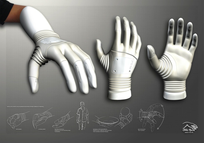 Latest 2014 Otto Bock 'Michelangelo' Bionic Hand with 5 finger movement