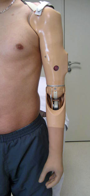 Cable Operated Above Elbow Arm