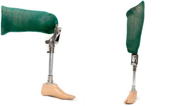 Knee Disarticulation Prosthesis